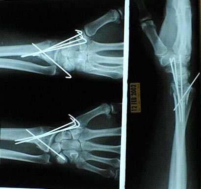 how i broke my wrist